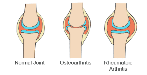 Different-Types-Arthritis