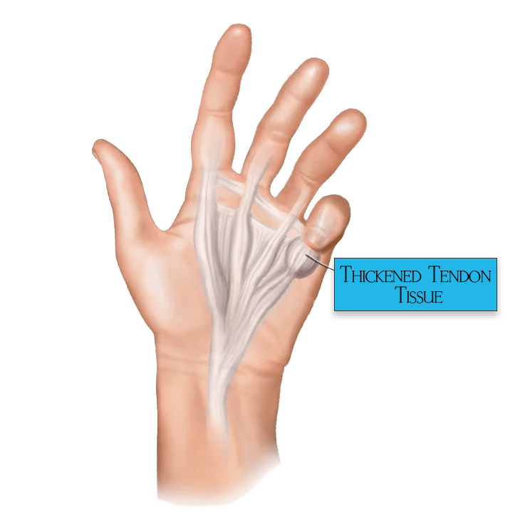 Dupuytrens-Contracture-Disease-