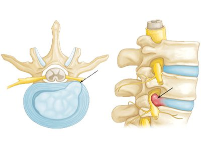 slipped-disc-herniated-disc